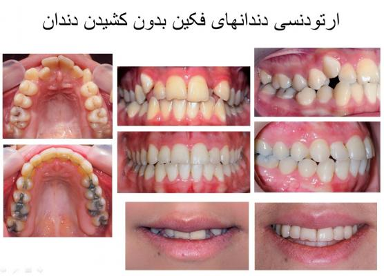 lingual-brace