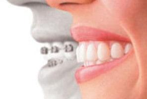 ارتودنسی یکی از مهمترین رشته های تخصصی دندانپزشکی است.