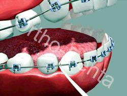روش استفاده از نخ دندان ارتودنسی