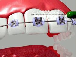 مسواک بین دندانی ارتودنسی