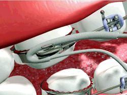 ارتودنسی-تمیز کردن زیر بند ارتودنسی
