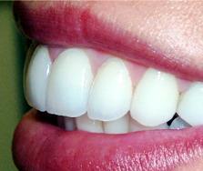 پس از درمان ارتودنسی بیمار باید از ریتنیر یا نگهدارنده ارتودنسی برای ردیف ماندن دندانهای مرتب شده کمک بگیرد