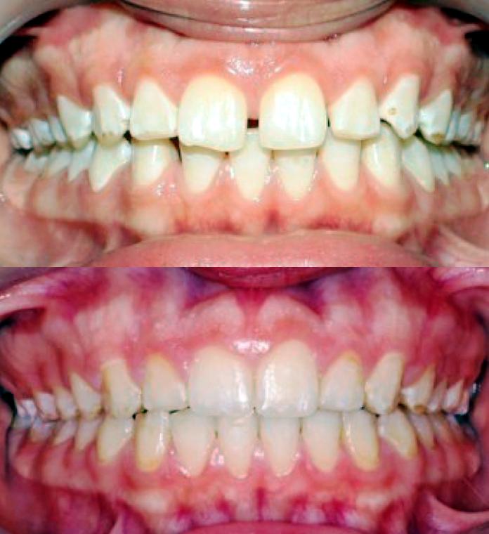 ارتودنسی-دندان های فاصله دار