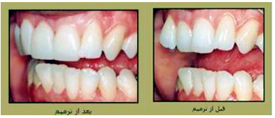 متخصص ارتودنسی- مرتب کردن دندان ها