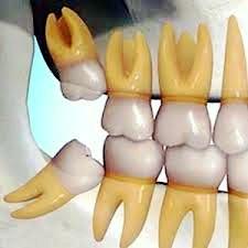 ارتودنسی-دندان عقل نهفته